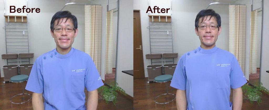 姿勢改善の前後写真